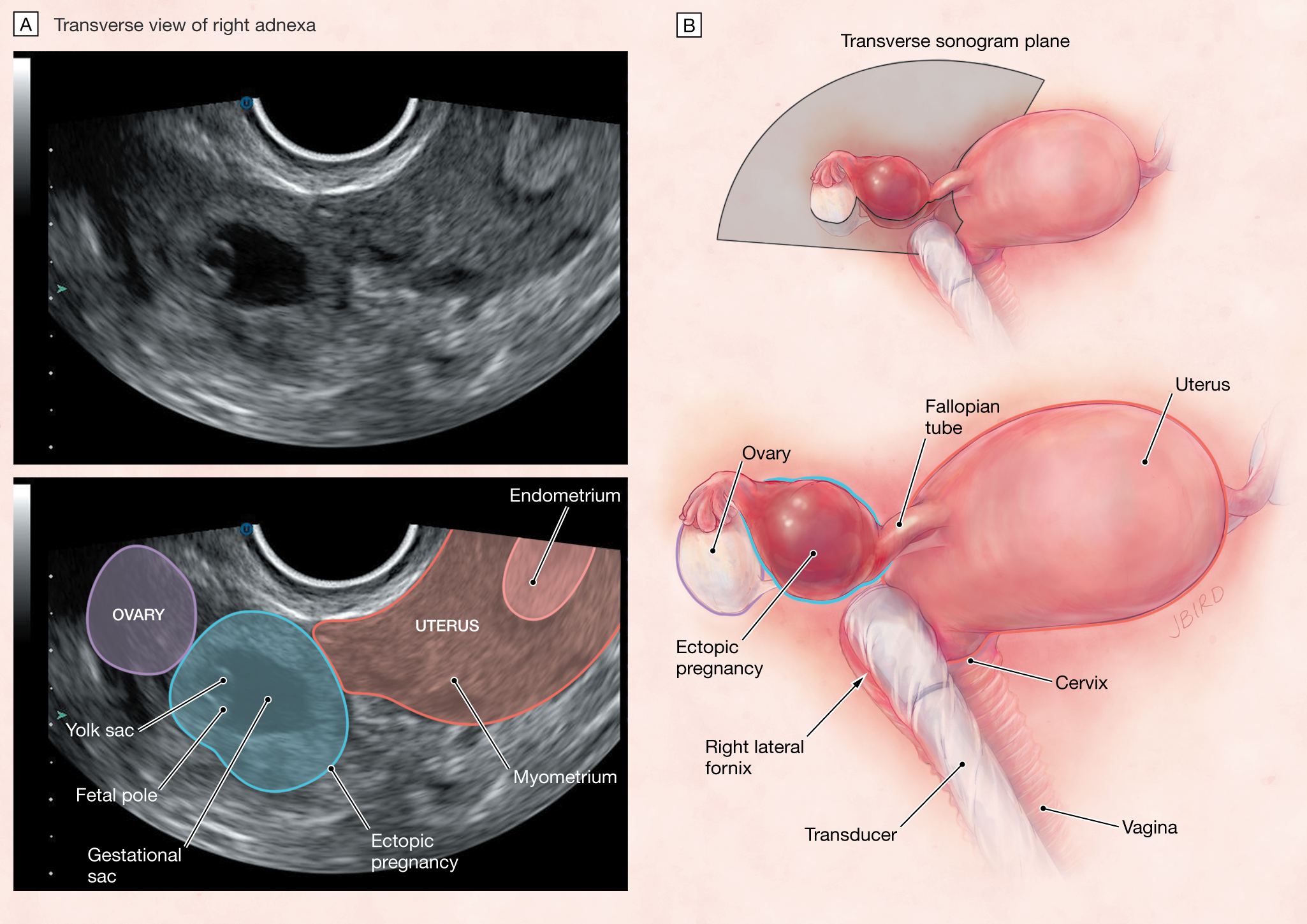 What Are The Symptoms Of An Ectopic Pregnancy Pharmacypedia