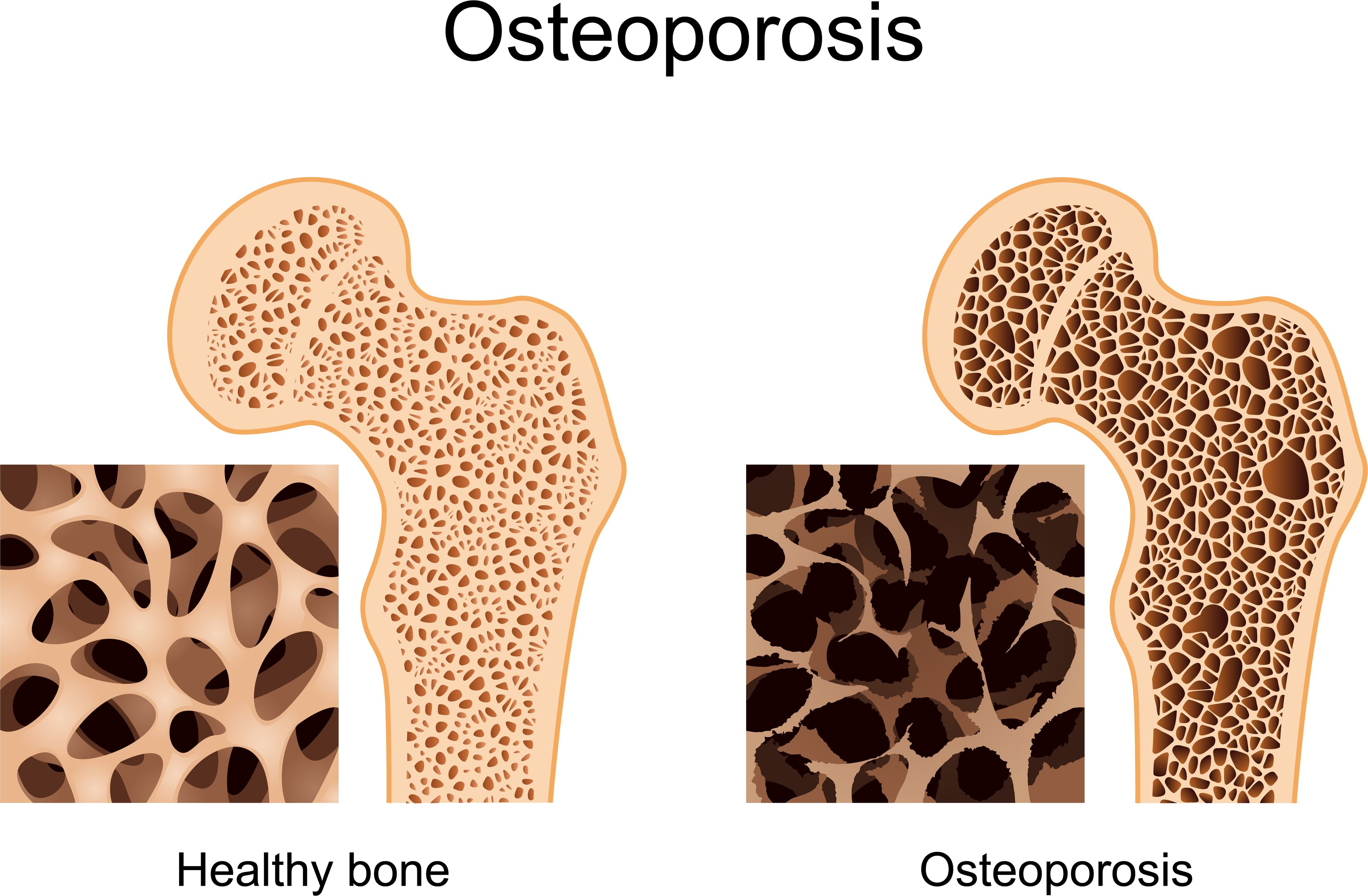 What is osteoporosis 91