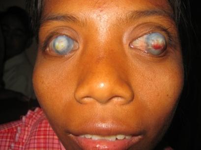 Measles - Wikipedia