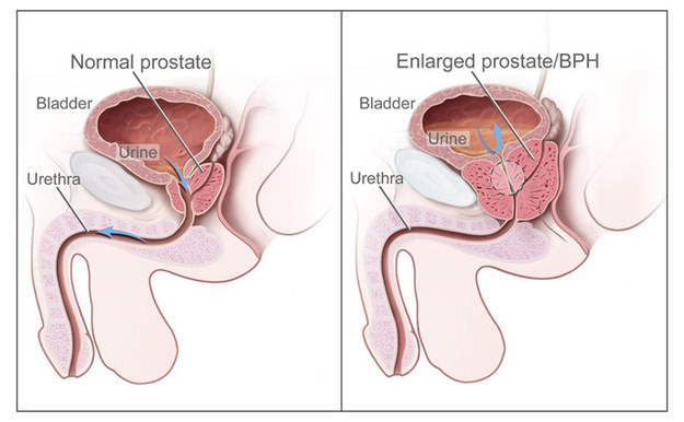 If you were born male, your prostate might cause some issues when you're older.